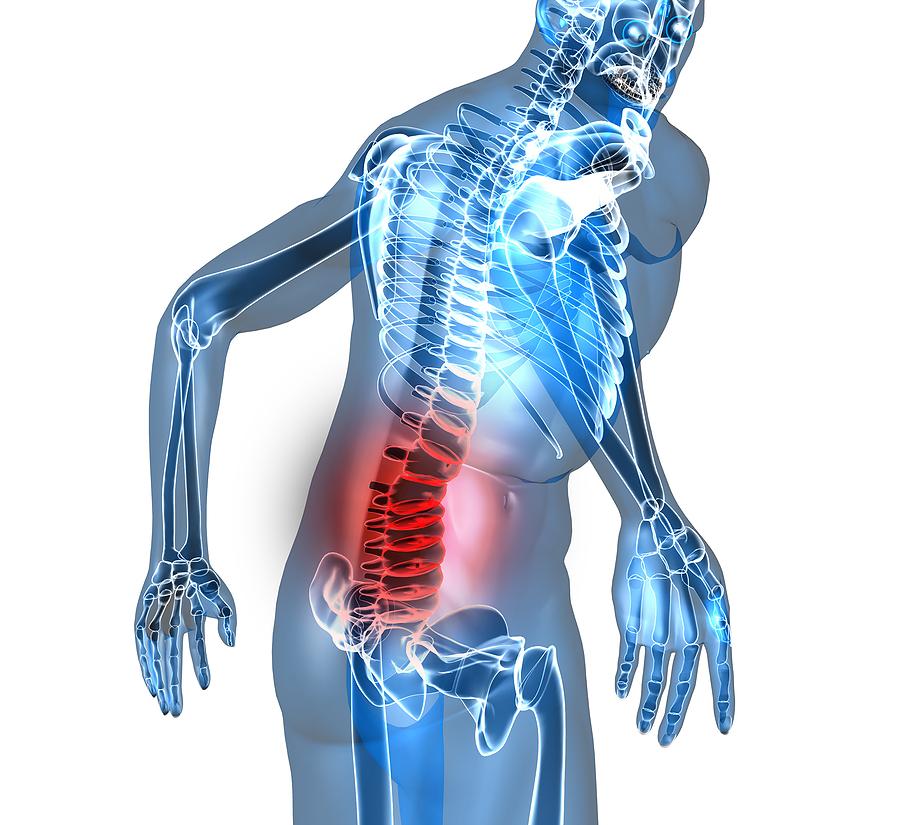 dyskopatia ból odcinka lędźwiowego kręgosłupa